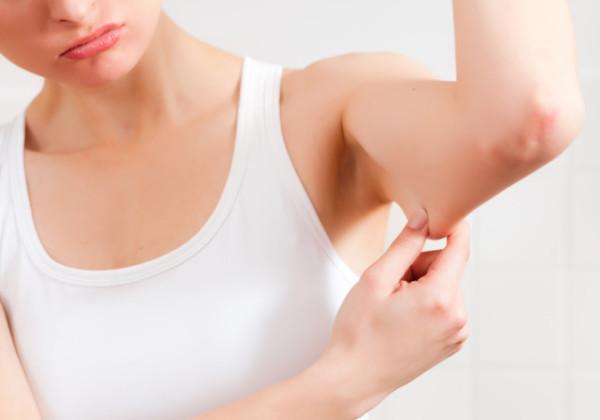 二の腕、ダイエット、二の腕を細くする方法、二の腕痩せ、二の腕引き締め、二の腕太い