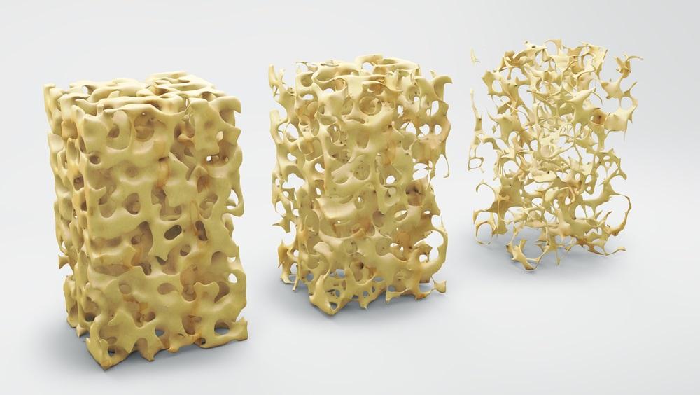 骨、骨粗しょう症、カルシウム、骨折、骨密度